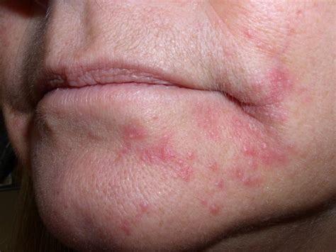 acne and candida picture 13