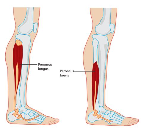 pain in joints picture 9
