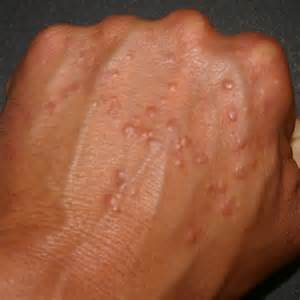 diabetes and skin problems picture 3