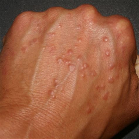diabetic skin conditions picture 3