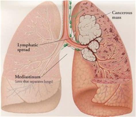 Alternative treatment prostate cancer picture 9