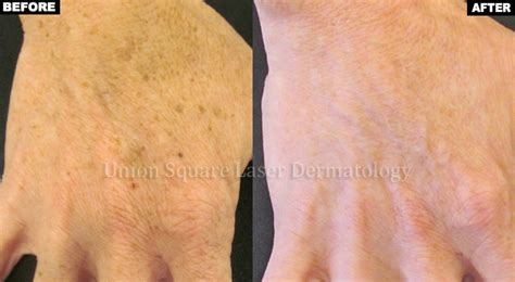 brown spots on skin picture 2