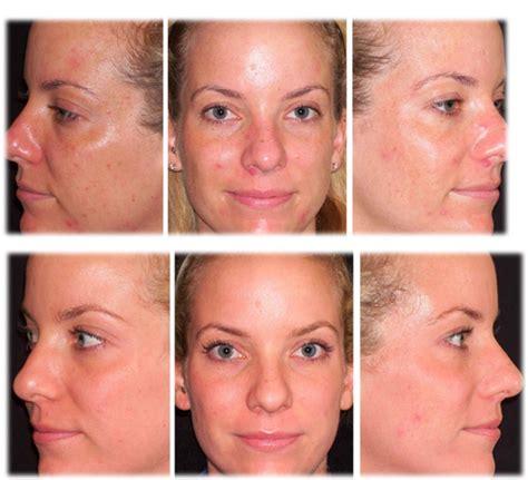 dermalogica skin care picture 9