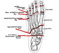 charcot joint picture 15