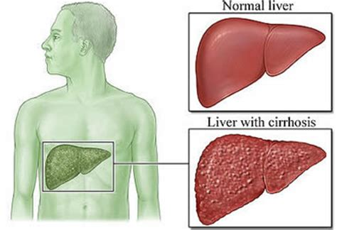 elevated liver enzymes remedies picture 2