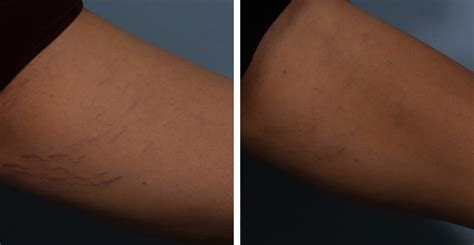 laser treatment of white stretch marks picture 1