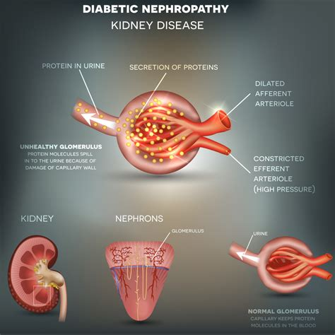 Symptoms low blood pressure picture 6