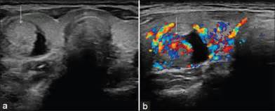 what is increased internal flow of thyroid nodule picture 1