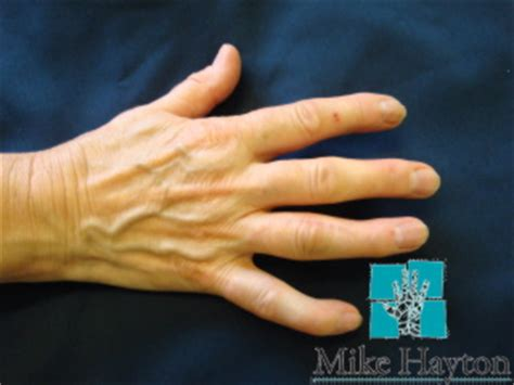 finger joint replacements picture 7