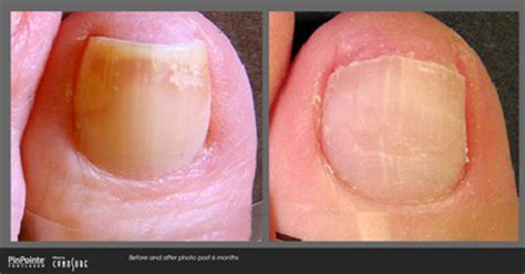 pinpoint laser for toe fungus picture 3