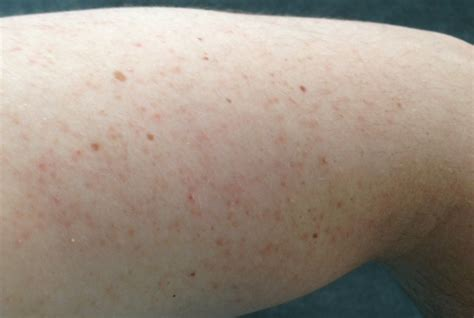 py patches of skin left arm picture 9