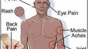 chikungunya virus symptoms and signs picture 13