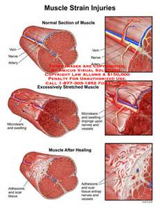 muscle injuries picture 14
