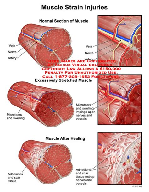 muscle tear heal time picture 10