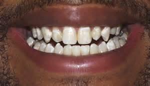 calcium spot teeth picture 6