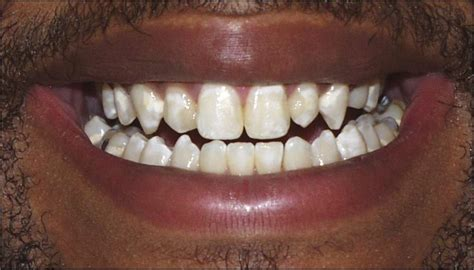calcium teeth white picture 6