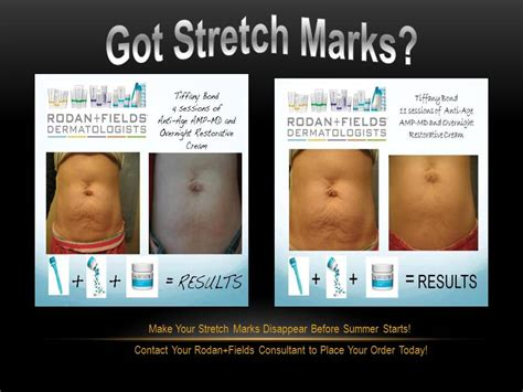 rodan and fields for stretch marks picture 3