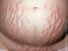 health and fitness stretch marks picture 2