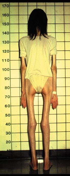pro anorexia weight loss picture 3