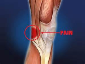pain behind knee picture 1