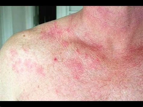 fungal infection of the skin picture 18