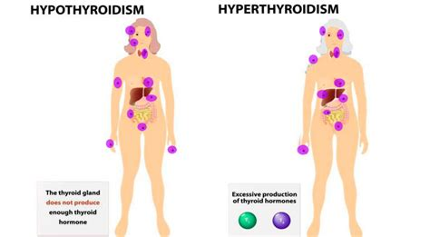where is the thyroid gland located picture 3