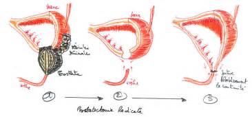 Supra pubic prostatectomy picture 17