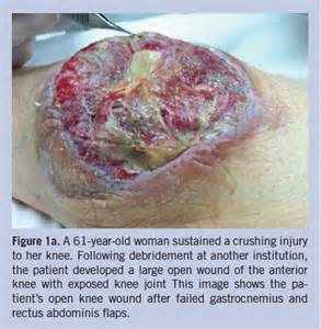 open skin wound picture 9