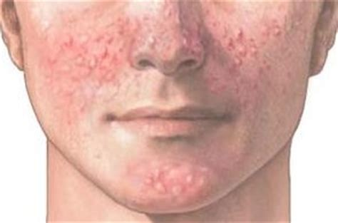 acne vulgaris causes, diagnosis & treatments - clinical picture 6