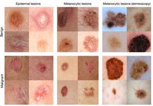 skin cancer identification picture 1