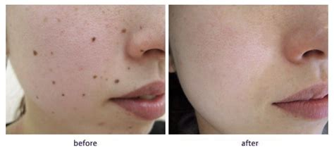 warts on face removal picture 11