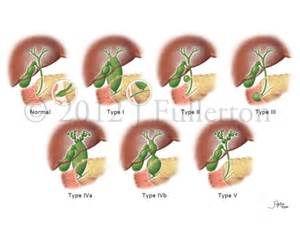 cysts on liver picture 7