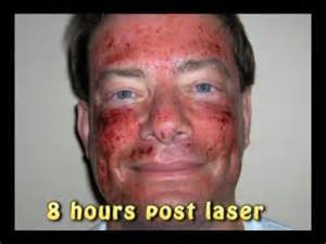 can total fx full face laser get rid picture 3