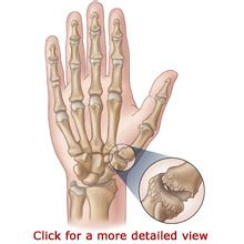 joint pain in wrist and thumbs picture 6