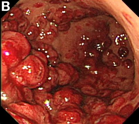 small intestinal cancer picture 7