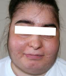 cortisol acne picture 17