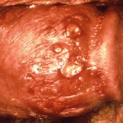 pictures of a penis with genitile herpes picture 6