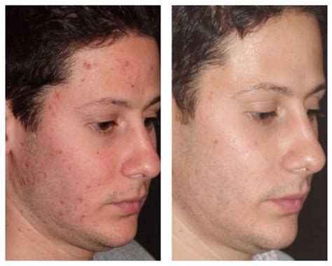 laser surgery for acne picture 14