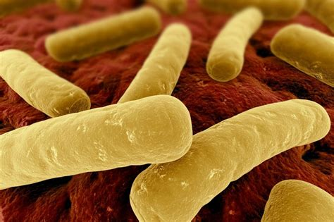 cdip bacterial infection picture 1