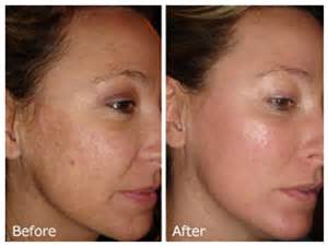 skin bleaching creams picture 17