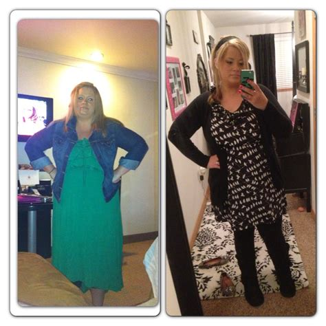 weight loss band picture 9
