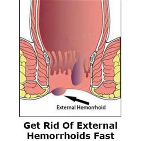 severe hemorrhoid pain picture 2
