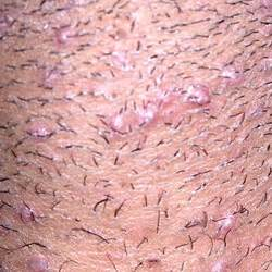 shave genital hair picture 10
