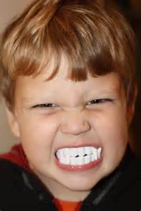 vampire teeth caps picture 3