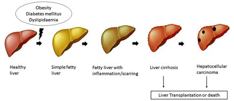 what are the early signs of liver damage picture 7