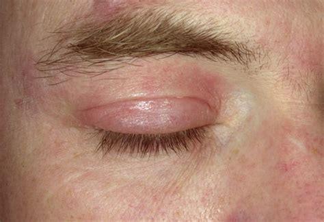 allergy in skin around eyes picture 7