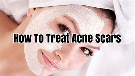 how to treat acne picture 2