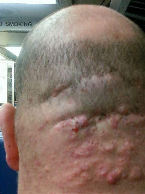 acne scalp picture 1
