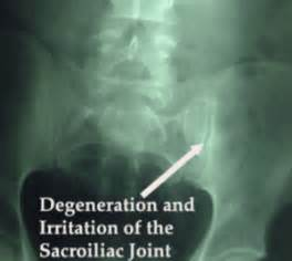 joint and leg pain picture 5