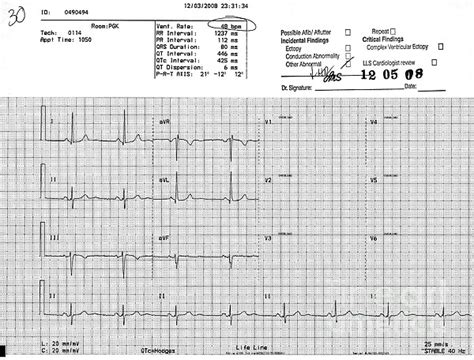 abnormal ekg and high blood pressure picture 4